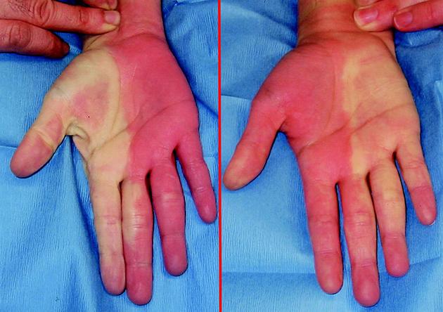 Bahaya Sering Menggunakan Perkakas Listrik dan Tangan, Pekerja Berisiko Terkena Hypothenar Hammer Syndrome (HHS)